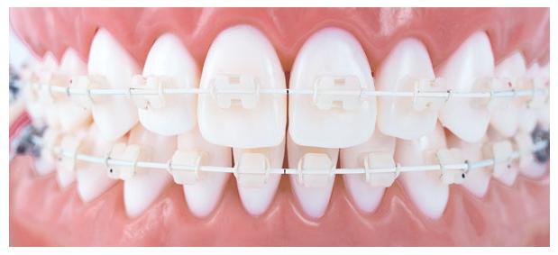 O tratamento ortodôntico no Hospital Odontológico Cir Premier