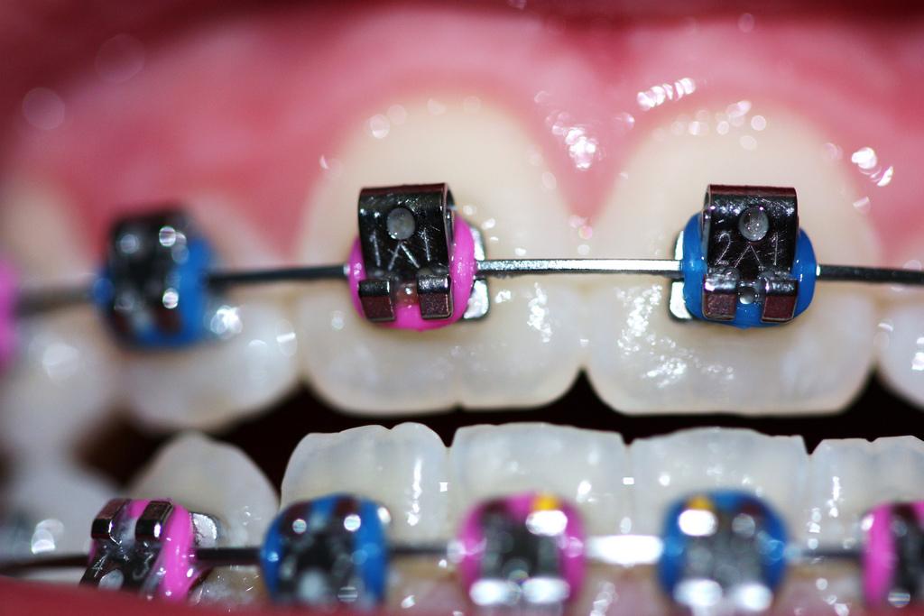 Frenulectomia pré-ortodontia