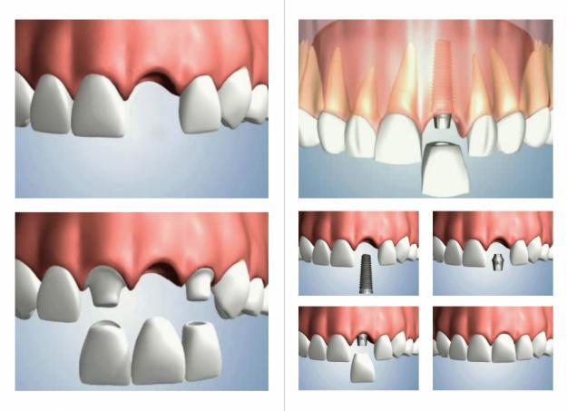 resultados positivos implantes dentarios cir premier brasilia